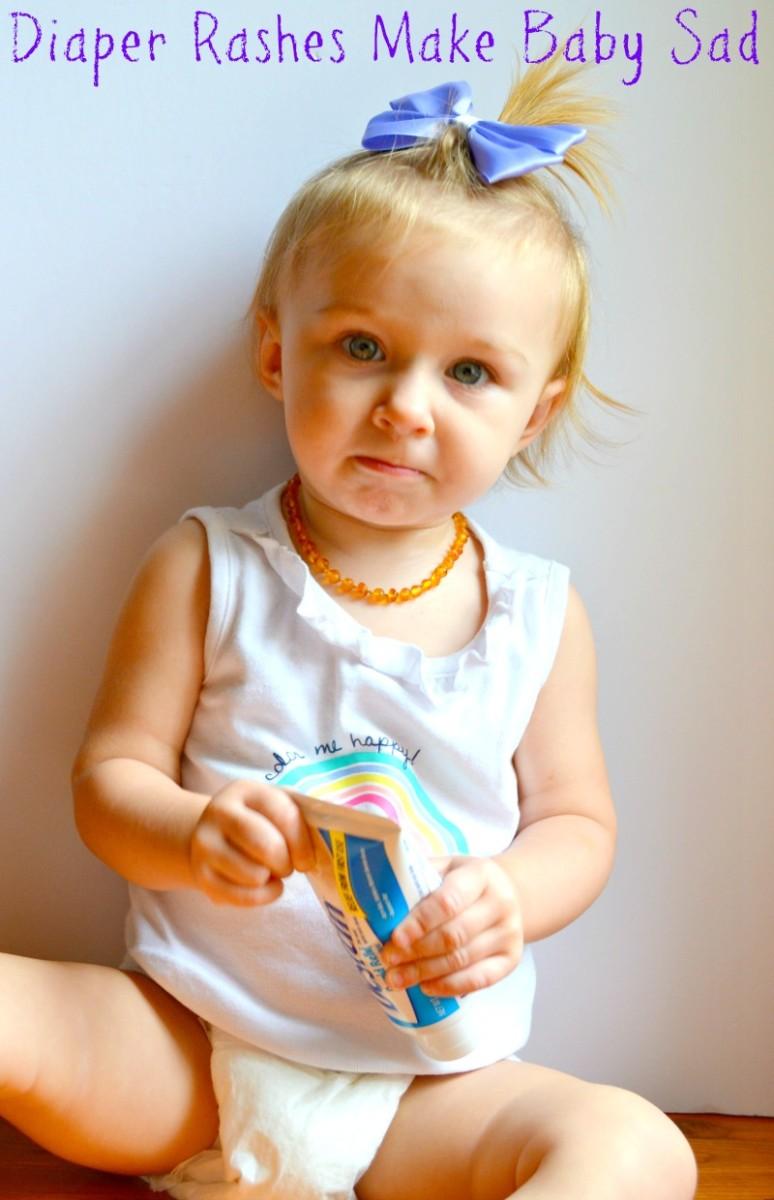 5 Ways to Prevent Diaper Rash