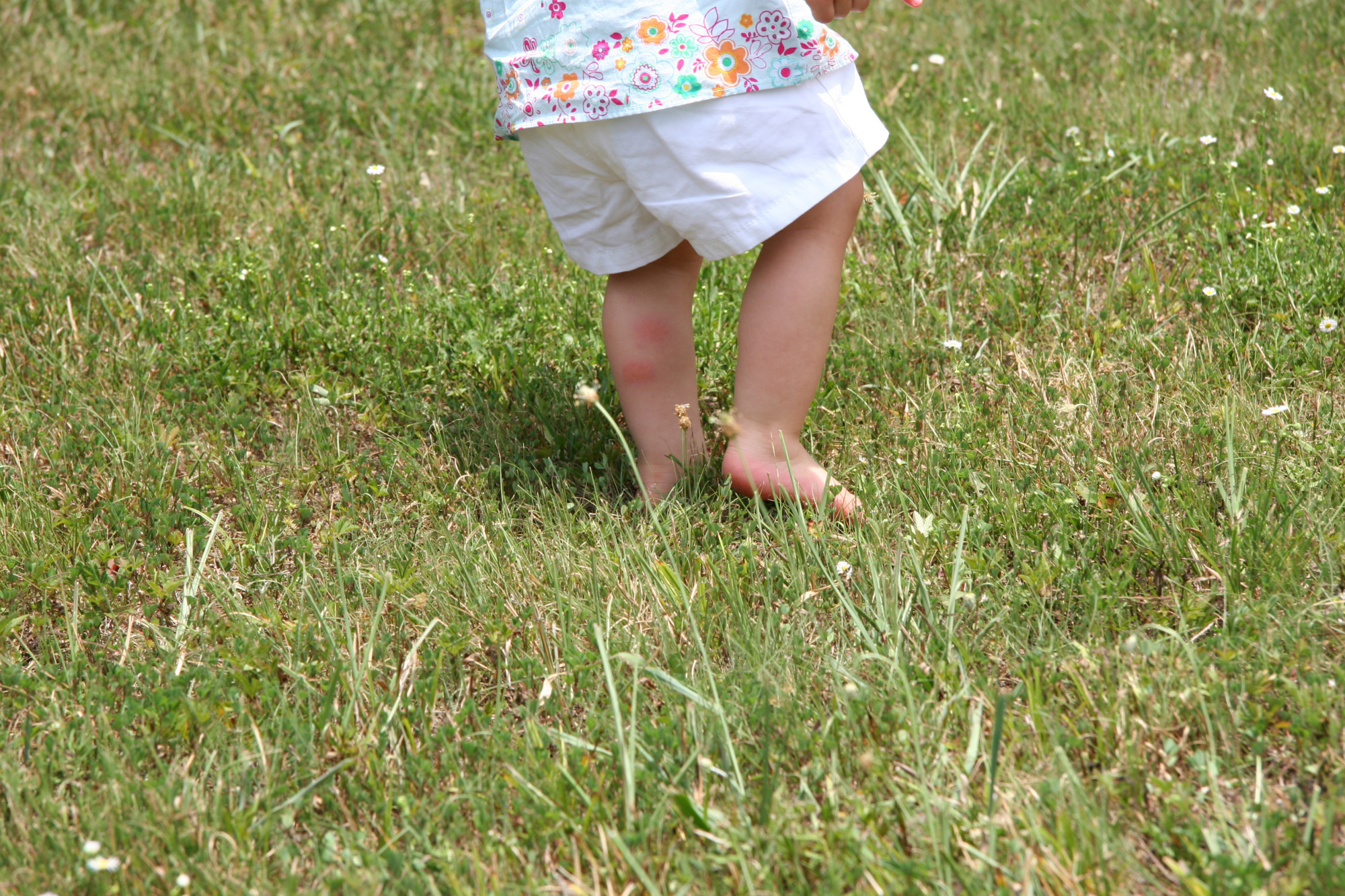5 Tips on How to Get Rid of Ticks on Your Property